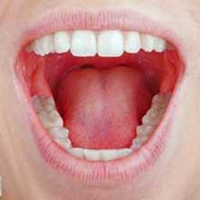 Mund & Rachen